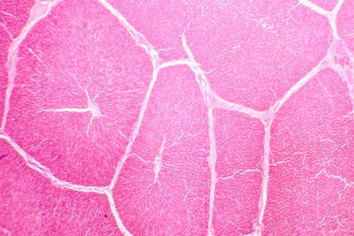Krew pępowinowa i komórki macierzyste. Hit czy kit?