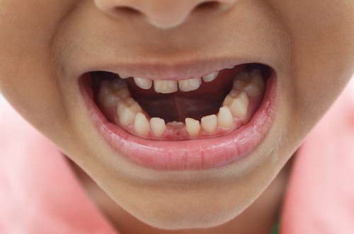 zgrzytanie zębów u dziecka