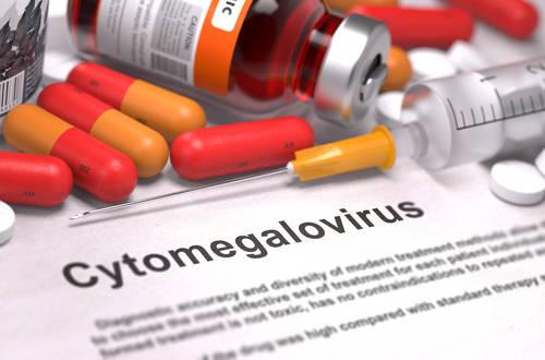 wirus cytomegalia