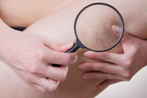 Czy da się uniknąć żylaków w ciąży?